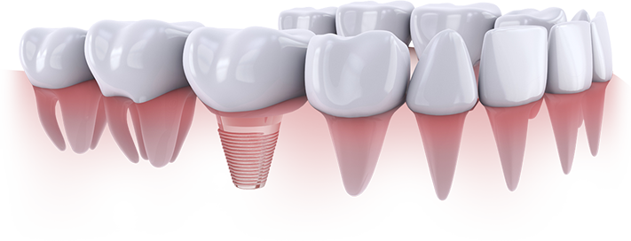 Dental Implants Humble Texas